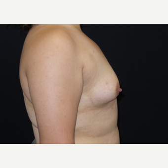 25-34 year old woman treated with Breast Augmentation before 3182014