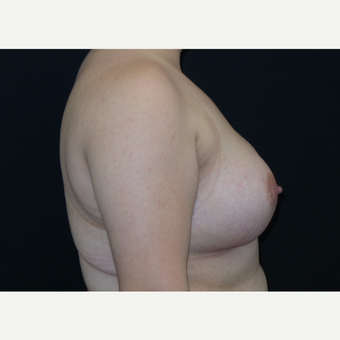 25-34 year old woman treated with Breast Augmentation after 3182014