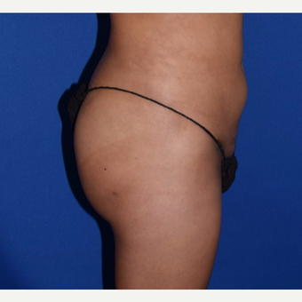 25-34 year old woman treated with Brazilian Butt Lift after 3069094