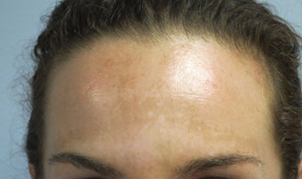 29 year old woman treated with IPL
