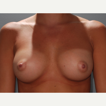 30 y/o Transaxillary Submuscular Breast Augmentation after 3066553
