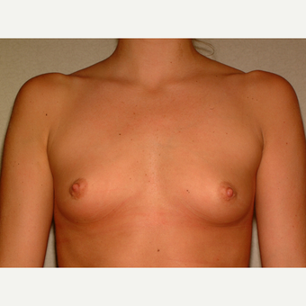 30 y/o Transaxillary Submuscular Breast Augmentation before 3066553