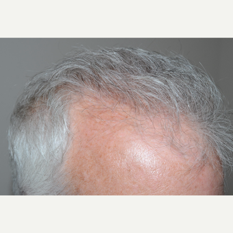 55-64 year old man treated with FUE Hair Transplant after 3382366