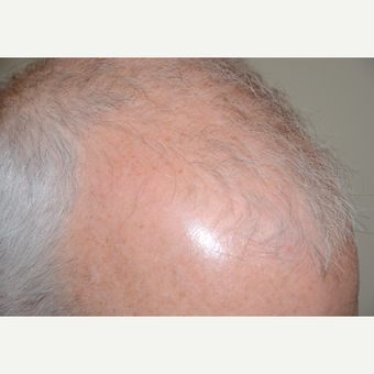 55-64 year old man treated with FUE Hair Transplant before 3382366