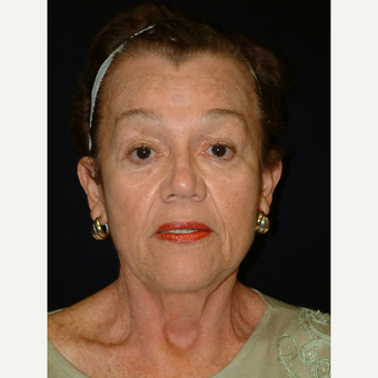 65-74 year old woman treated with Facelift after 3170701