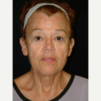 65-74 year old woman treated with Facelift before 3170701