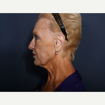 75 and up year old woman treated with Neck Lift (view 2 of 2) before 3710599