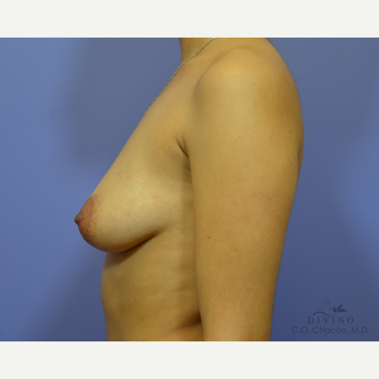 25-34 year old woman treated with Breast Augmentation before 3329359