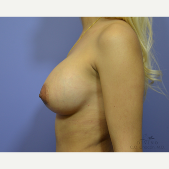 25-34 year old woman treated with Breast Augmentation after 3329359