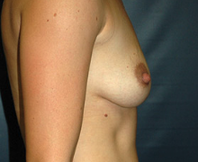 Breast Implants before 3545142