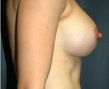Breast Implants after 3545142