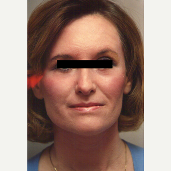 35-44 year old woman treated with Chemical Peel after 3543350