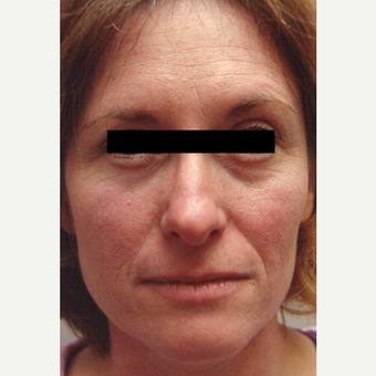 35-44 year old woman treated with Chemical Peel before 3543350