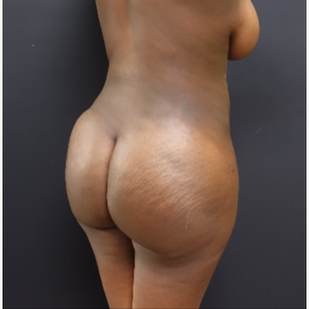 25-34 year old woman treated with Liposculpture after 3363902