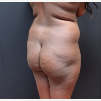25-34 year old woman treated with Liposculpture before 3363902