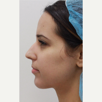 29 year old female treated with Voluma for chin augmentation after 3481903