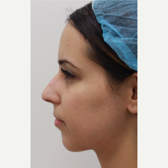 29 year old female treated with Voluma for chin augmentation before 3481903
