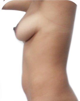 25-34 year old woman treated with Breast Lift with Implants 2366868