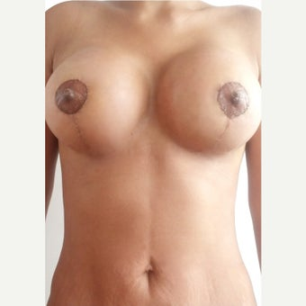 25-34 year old woman treated with Breast Lift with Implants after 2366868
