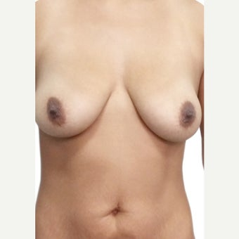 25-34 year old woman treated with Breast Lift with Implants before 2366868