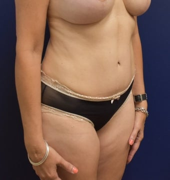 45-54 year old woman treated with Liposuction after 3294037