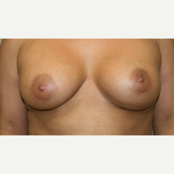 25-34 year old woman treated with Breast Implants after 3153933