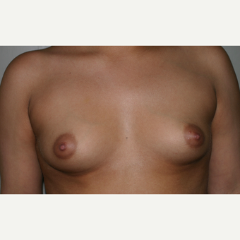 25-34 year old woman treated with Breast Implants before 3153933