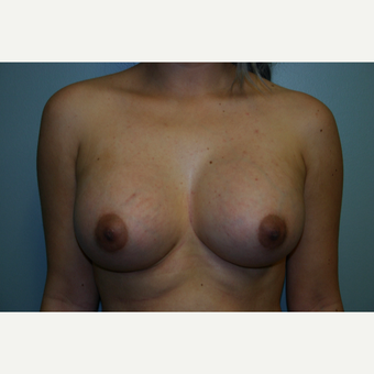 18-24 year old woman treated with Breast Augmentation after 3054475