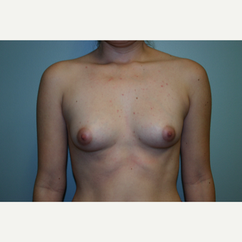 18-24 year old woman treated with Breast Augmentation before 3054475