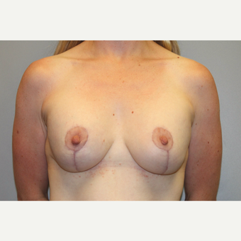 35-44 year old woman treated with Breast Augmentation after 3588709