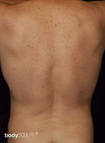 35-44 year old man treated with Smart Lipo Abdomen and Flanks after 3542194