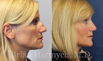43 year-old female before and 9 months after Rhinoplasty before 3447467