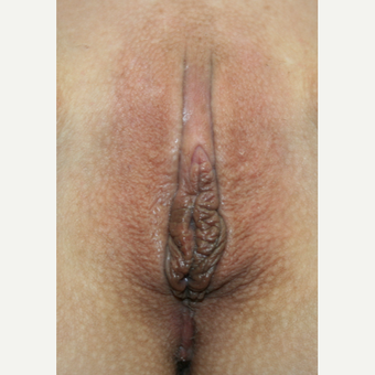 35-44 year old woman treated with Vaginal Rejuvenation after 2863787