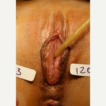 35-44 year old woman treated with Vaginal Rejuvenation before 2863787
