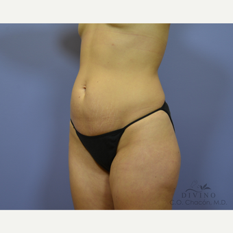 25-34 year old woman treated with Tummy Tuck before 3415673