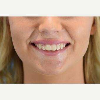 25-34 year old woman treated with Lip Augmentation after 3624426