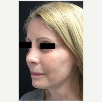 55-64 year old woman treated with Revision Rhinoplasty after 3187235