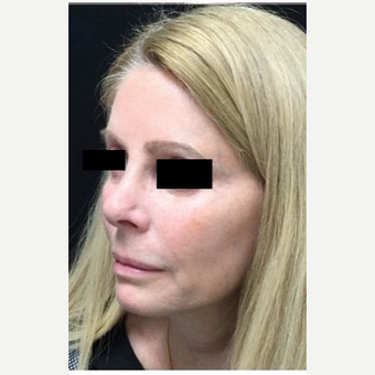 55-64 year old woman treated with Revision Rhinoplasty before 3187235