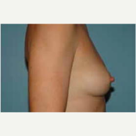 Breast Augmentation before 3058284