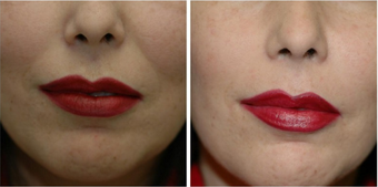 45-54 year old woman treated with Juvederm to Nasolabial folds before 2547662