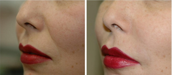 45-54 year old woman treated with Juvederm to Nasolabial folds after 2547662