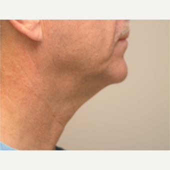 55-64 year old man treated with Neck Lift before 3763263