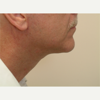 55-64 year old man treated with Neck Lift after 3763263