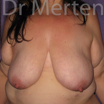 Breast Reduction before 3681310