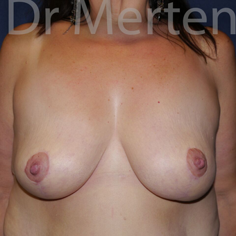 Breast Reduction after 3681310