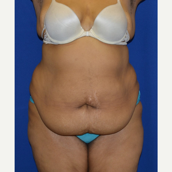 55-64 year old woman treated with No-Drain Tummy Tuck before 3655713