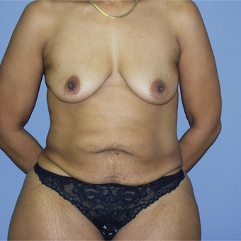 45-54 year old woman treated with Mommy Makeover before 3146835