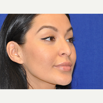 35-44 year old woman treated with Rhinoplasty before 3219669