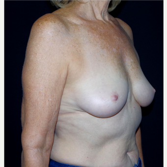 55-64 year old woman treated with Breast Fat Transfer