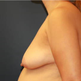 35-44 year old woman treated with Breast Lift with Implants before 3554349